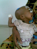Thumb_malnutrition-3