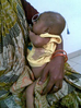 Thumb_malnutrition-5