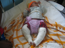 Thumb_the_orphan_having_surgery_of_two_legs-supported_by_clobal_initiatives.